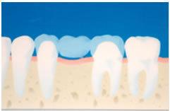 足立区綾瀬の歯医者 新井歯科医院 ブリッジの特徴
