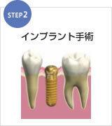 足立区綾瀬の歯医者 新井歯科医院 インプラント インプラント手術