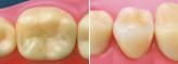 足立区綾瀬の歯医者 新井歯科医院 E-maxインレー、クラウン