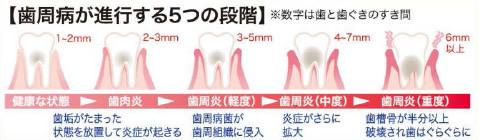 足立区綾瀬の歯医者 新井歯科医院 実は深い繋がりが!?糖尿病と歯の健康