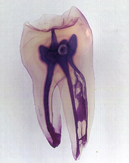 足立区綾瀬の歯医者 新井歯科医院 歯の神経の様子