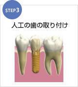 足立区綾瀬の歯医者 新井歯科医院 インプラント 人工の歯の取り付け