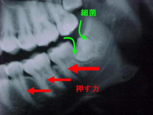 足立区綾瀬の歯医者 新井歯科医院 左下の親知らず