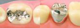 足立区綾瀬の歯医者 新井歯科医院 インレー(写真左)、クラウン(写真右)