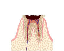 足立区綾瀬の歯医者 新井歯科医院 虫歯治療 C4