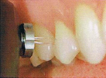 足立区綾瀬の歯医者 新井歯科医院 削る量を抑えた治療と予防