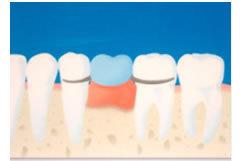 足立区綾瀬の歯医者 新井歯科医院 義歯の特徴