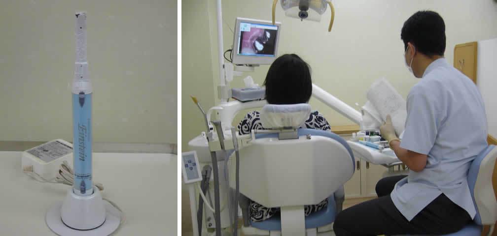 足立区綾瀬の歯医者 新井歯科医院 口腔内カメラを使用した治療説明
