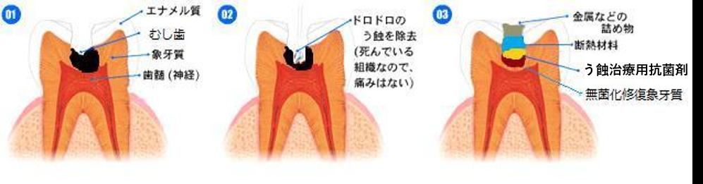 足立区綾瀬の歯医者 新井歯科医院 薬で治す虫歯治療
