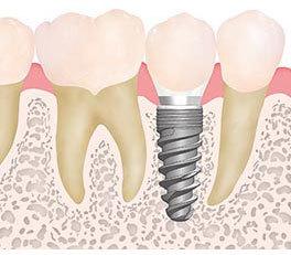 足立区綾瀬の歯医者 新井歯科医院 下部・上部構造+セラミック歯