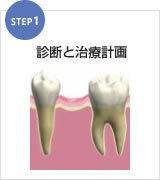 足立区綾瀬の歯医者 新井歯科医院 インプラント 診断と治療計画