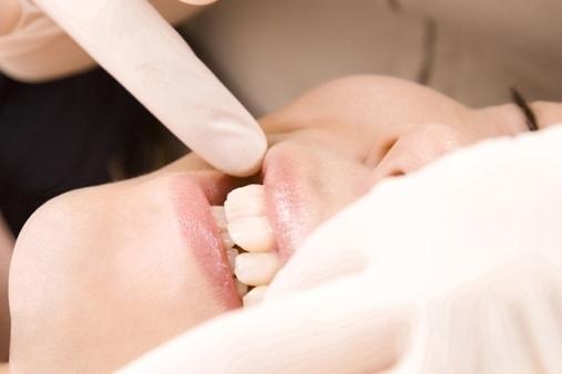 足立区綾瀬の歯医者 新井歯科医院 虫歯治療 詰め物や被せ物を装着