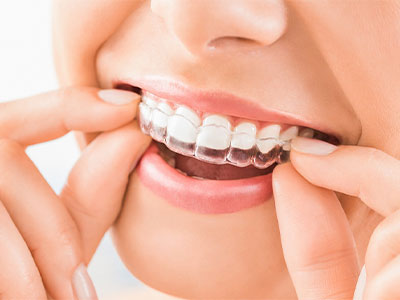 足立区綾瀬の歯医者 新井歯科医院 矯正歯科 矯正治療のスタート
