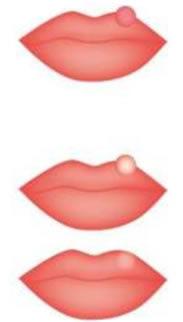 かさぶた 口唇ヘルペス